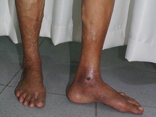 Loét chân - Biến chứng nặng nề của giãn tĩnh mạch