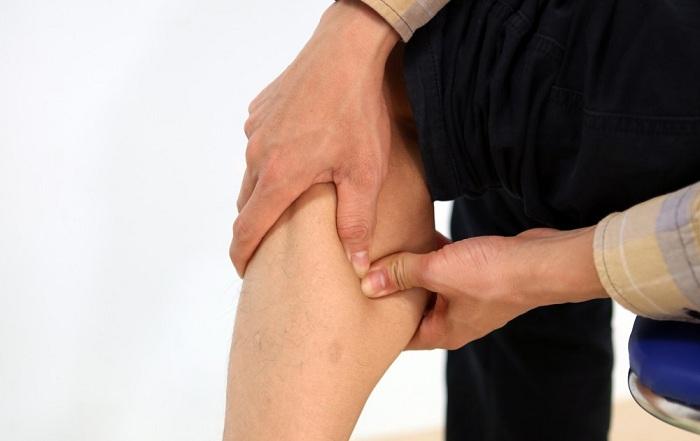Bệnh giãn tĩnh mạch chân và những điều bạn cần biết.