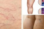 Căn bệnh giãn tĩnh mạch chân có nguy hiểm không