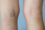 Mắc bệnh giãn tĩnh mạch chân có nguy hiểm không