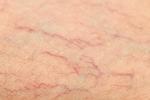 Những tác động sức khỏe đến từ việc vỡ tĩnh mạch dưới da