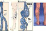 Tại sao nhiều người trẻ mắc bệnh suy giãn tĩnh mạch