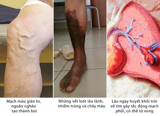 Cách điều trị bệnh suy giãn tĩnh mạch chân
