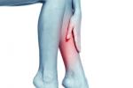 Điều trị giãn tĩnh mạch chân ở đâu?