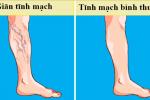 Điều trị suy giãn tĩnh mạch chân