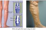 Giãn tĩnh mạch chân khám ở đâu và những điều bạn cần biết