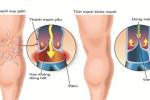 Phương pháp điều trị giãn tĩnh mạch chân hiệu quả