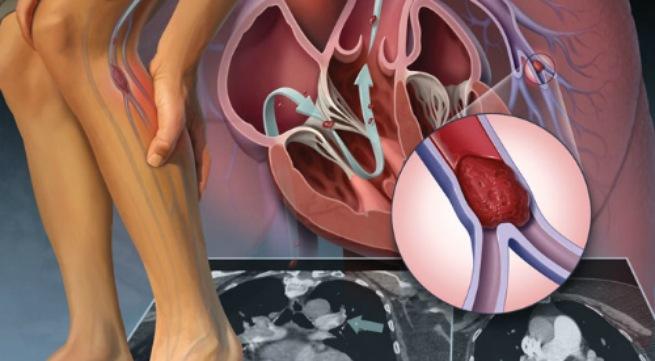 Điều trị bệnh suy giãn tĩnh mạch