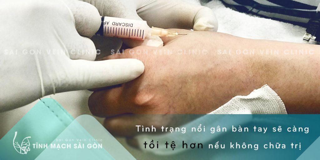 BV -TM - GTM TAY 31032021